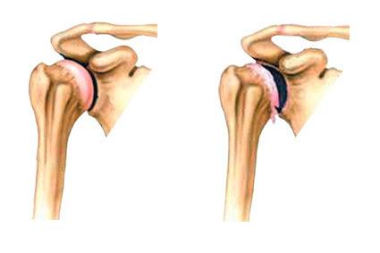 Артроз плечевого сустава и шейного отдела - унковертебральный ...