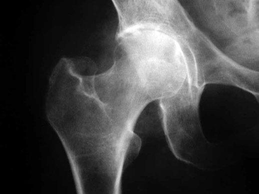 Артроз тазобедерного сустава лечение санкт-петербург лечение растяжения в локтевом суставе
