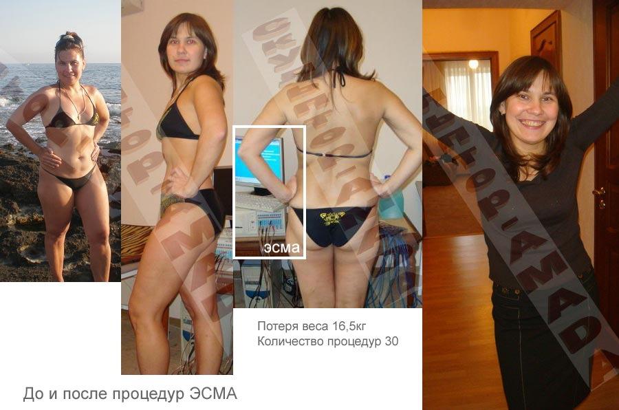 (IMG:http://www.esma.ru/images