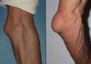Бурситы локтевого сустава (рис.1)