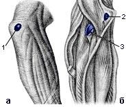 Область правого локтевого сустава, вид сзади (а) и спереди (б) (рис.3)