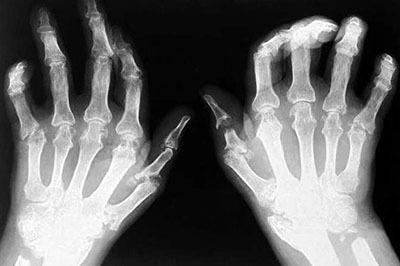 Суставный ревматизм курорт лечение суставов нолтрексом